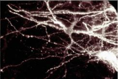 Un réseau neuronal